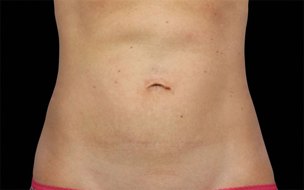 CoolSculpting Abdomen Treatment | After