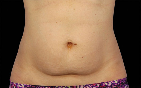 CoolSculpting Abdomen Treatment | Before