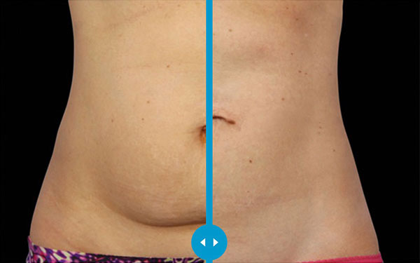 CoolSculpting Abdomen and Stomach Treatment