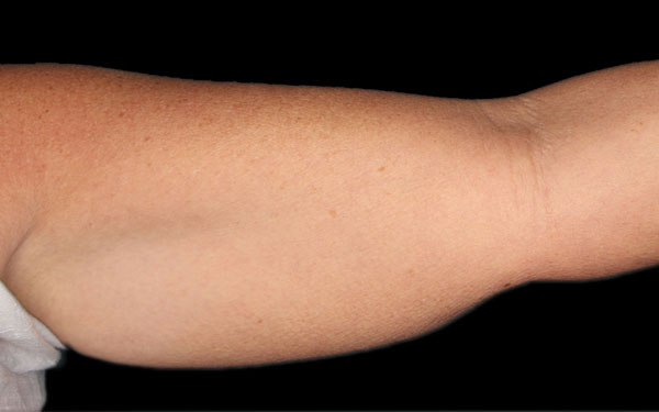 CoolSculpting Arms Treatment | Before