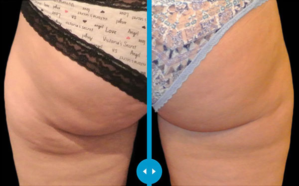 CoolSculpting Buttocks Banana Roll Treatment