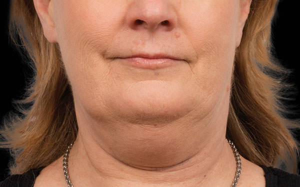 CoolSculpting Chin Treatment | Before