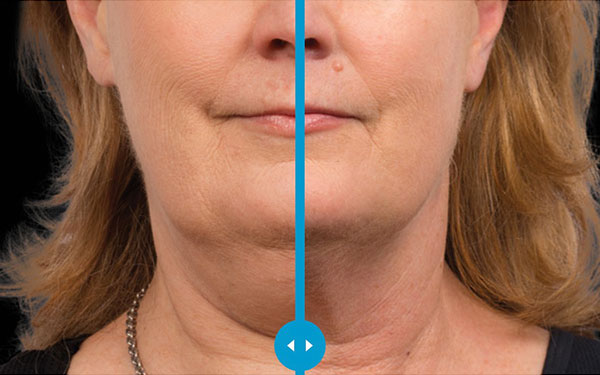CoolSculpting Chin Submentum Treatment