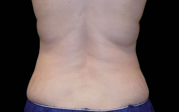 CoolSculpting Flanks Treatment and Love Handle Reduction | After