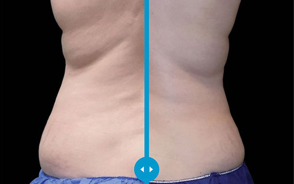 CoolSculpting Flanks and Love Handles Treatment