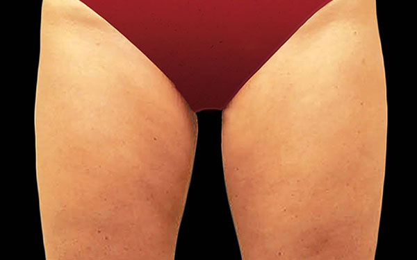 CoolSculpting Thighs Treatment | After