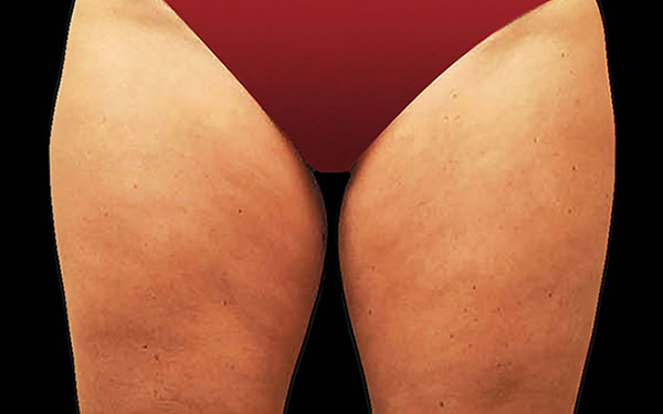 CoolSculpting Thighs Treatment | Before