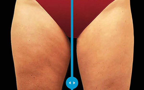 Coolsculpting Thighs Treatment
